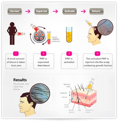 efficacy of growth factors concentration after prp Platelet rich plasma (prp) for hair loss you may be wondering why platelet rich plasma, or prp, as a treatment for hair growth belongs in a blog about natural remedies for hair loss because it is the perfect natural treatment.